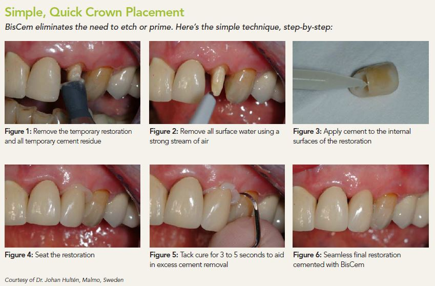 biscem crown placement steps
