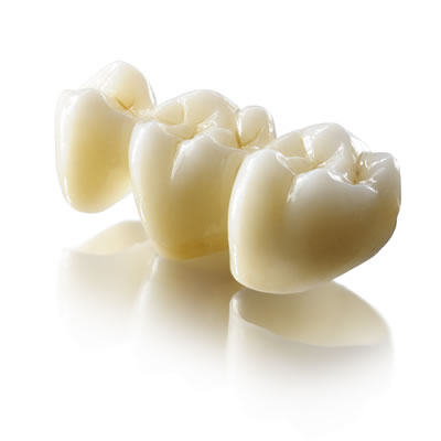 Lava Plus High Translucency Zirconia