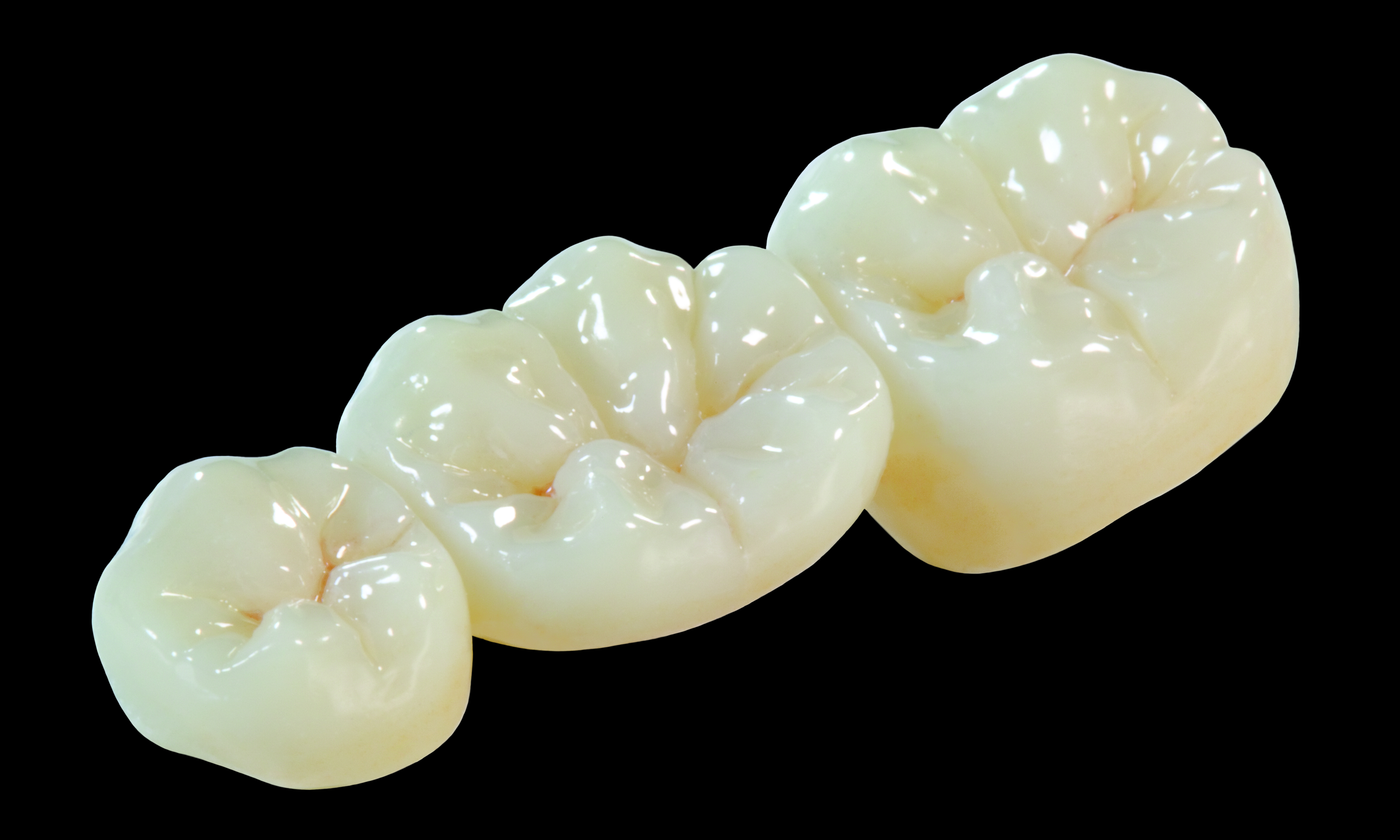 Oral Arts Dental Laboratories' BruxZir Crowns