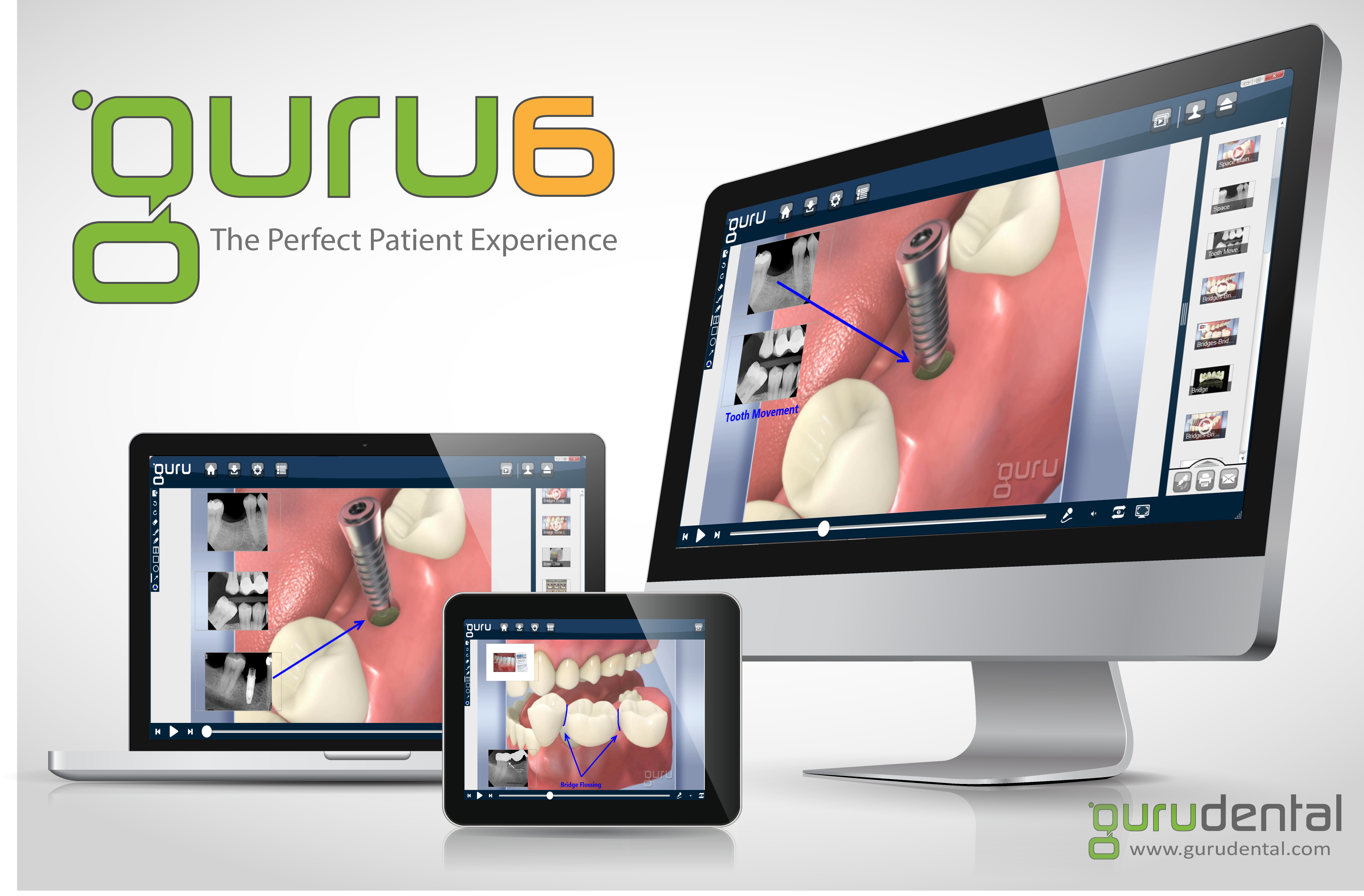 Guru Dental Guru 6 Update