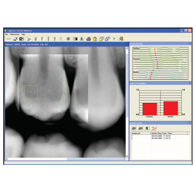 Logicon Caries Detector Software