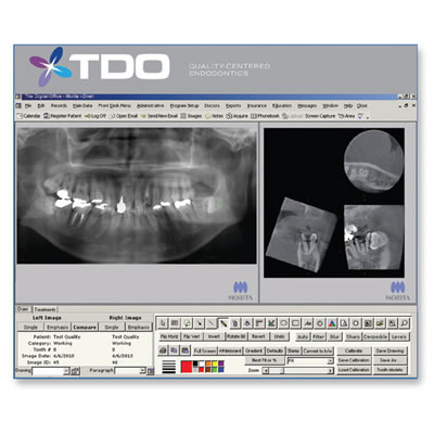 TDO Software Integration