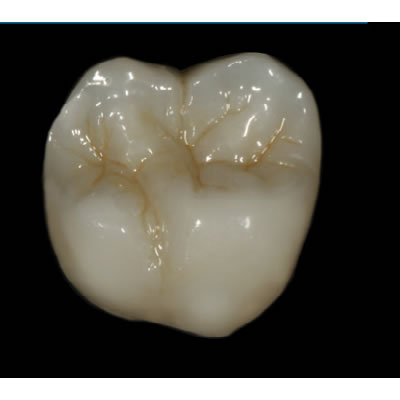 DANAREN DENTAL LABORATORIES - CAD/CAM RESTORATIONS