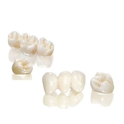 SUN DENTAL LABS - CAD/CAM RESTORATIONS