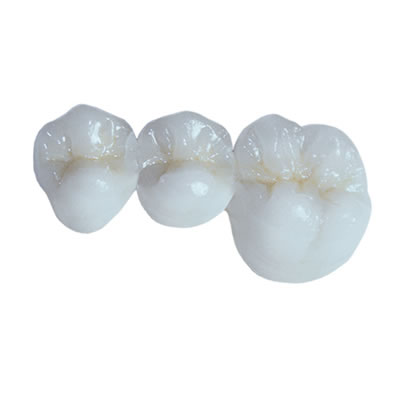 TRIDENT DENTAL LABORATORIES - CAD/CAM RESTORATIONS