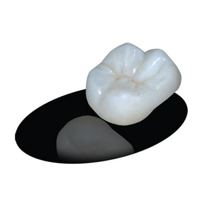 TRIDENT TRICON FULL ZIRCONIA