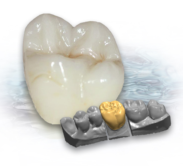 Drake Dental Laboratories - ZirCast
