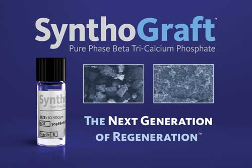 SynthoGraft