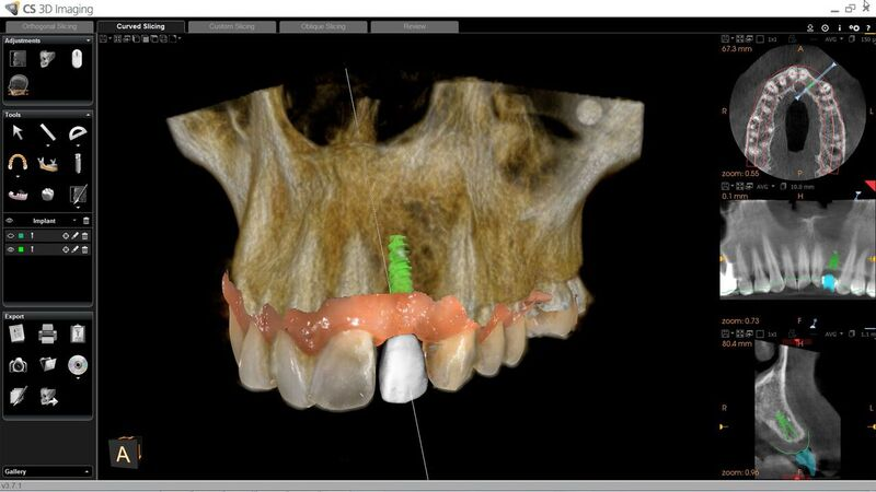 CS Solutions for Implants