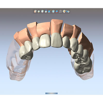 DentalCAD Upgrade