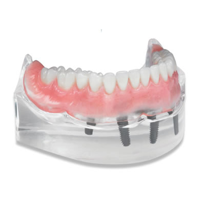 DENTSPLY Portrait IPN Premium Denture Teeth