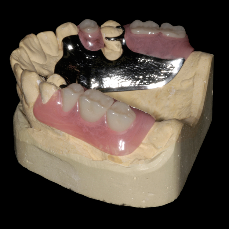 Drake Dental Laboratories - Vitallium 2000+ Cast Partials