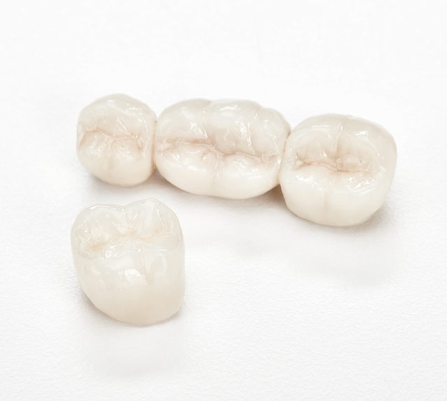 Znext Full Contour Zirconia Crowns