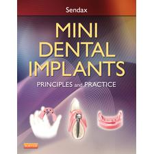 Mini Dental Implants - Book