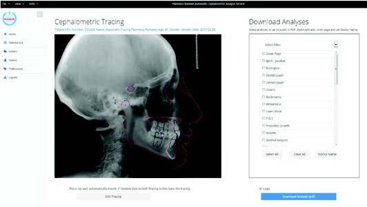 Cephalometric Tracing and Analysis Service
