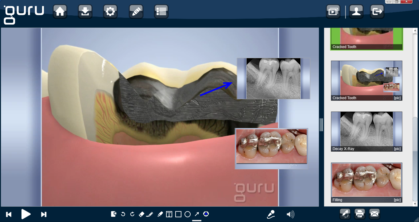 Guru 5 Dental Patient Education Software