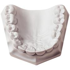 Orthodontic Stone
