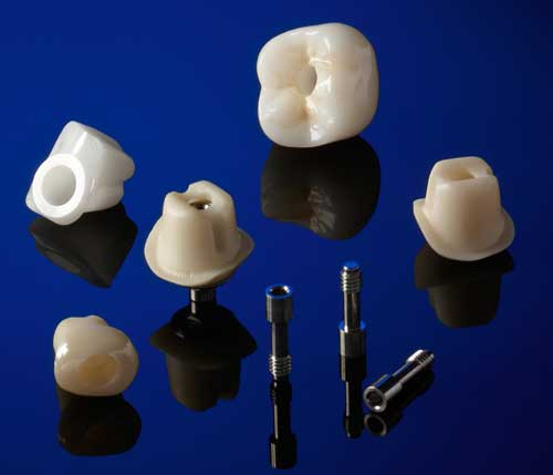 Whip Mix Milled Custom Abutments